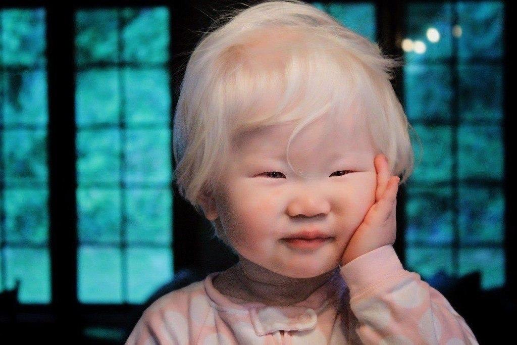 ещё один азиаты альбиносы фото пренебрегать